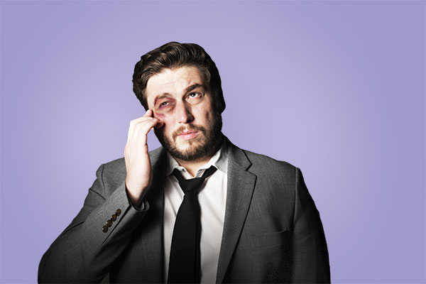 SNL writer and comedian (and Fordham graduate) Streeter Seidell with fake black eye